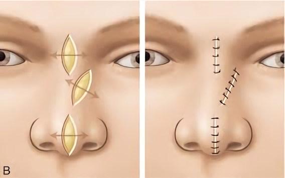 Chirurgie Dermatologique
